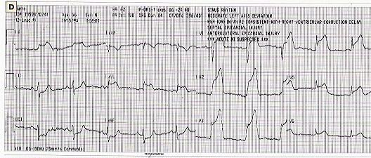 field 12 lead ecg diagnosis